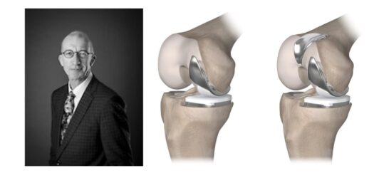 Spire Hospital Southampton offer more options for knee surgery
